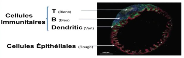 Perméabilité intestinale et hyperperméabilité intestinale 9