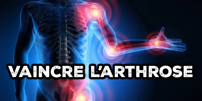 guérir arthrose