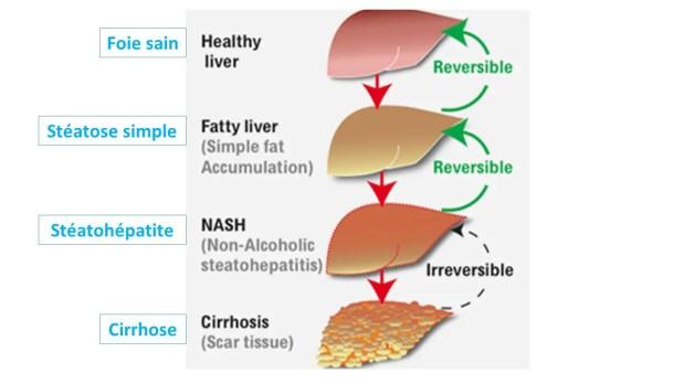 Stéatose hépatique non alcoolique