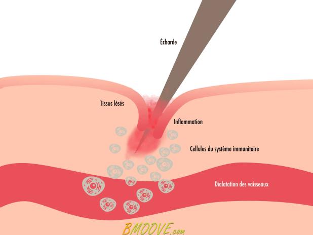 l'inflammation aiguë