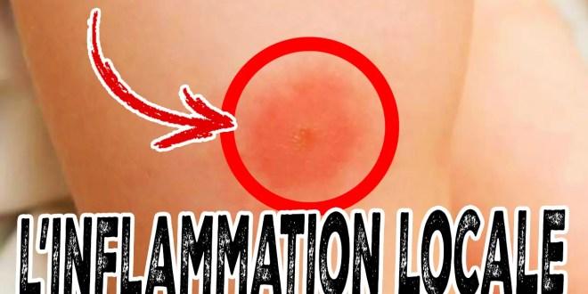 inflammation locale / aiguë
