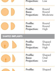 Breast implant size chart to also guide in by ennis plastic surgery boca raton fl rh bocaplasticsurgery
