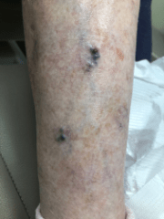 Bleeding Varicose Veins