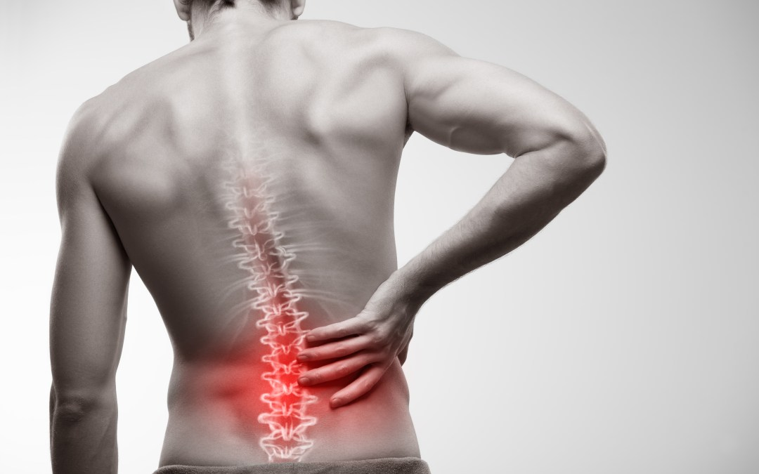 Debunking 4 Common Misconceptions About Back Pain