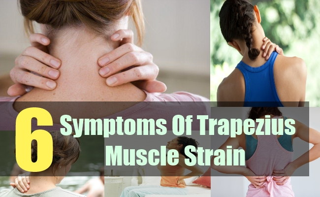6 Symptoms Of Trapezius Muscle Strain