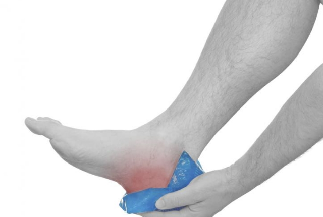 Treating Arch Pain: