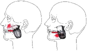 Changes in masseter muscle trigger points following strain