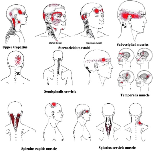 Referred pain areas of active myofascial trigger points in