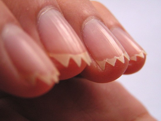 Nails Look Like They Were Cut With Pinking Shears Boing