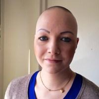 Att tänka på när man fått sin diagnos - att köpa peruk på internet