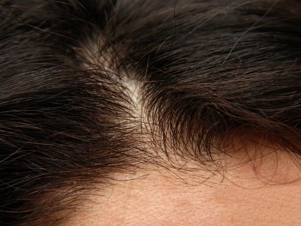 How To Treat Scar Tissue In Scalp