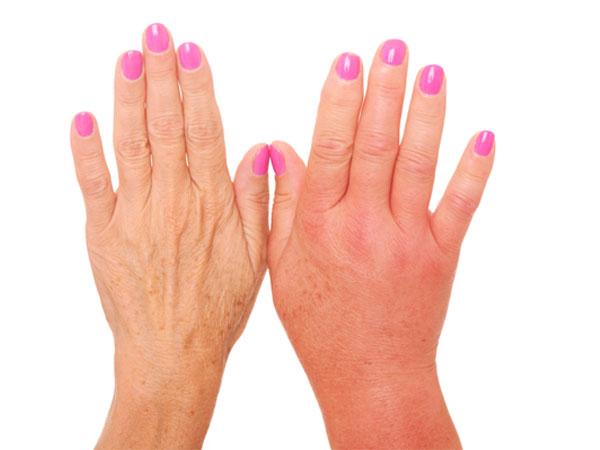 Poor Causes Circulation Feet
