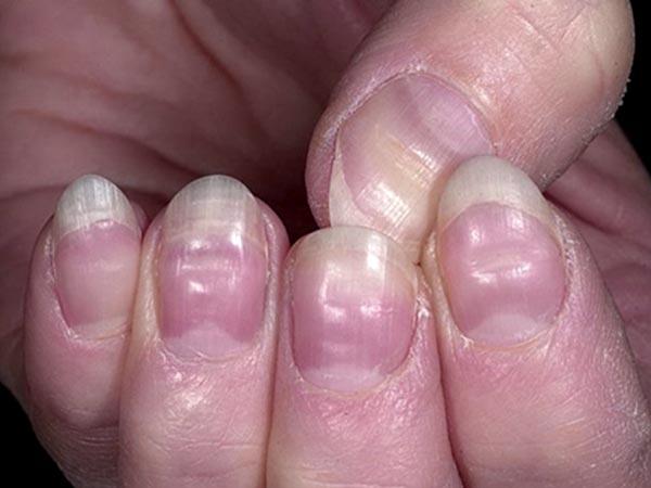 Image Gallery jaundice fingernails
