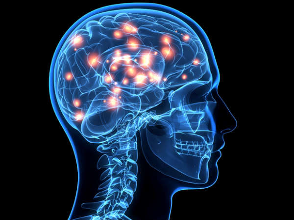 What Is Ischemic Stroke?