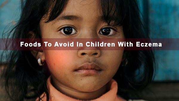 एक्जिमा वाले बच्चों में खाने से बचें