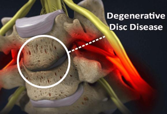 Types Lumbar Disc Disease