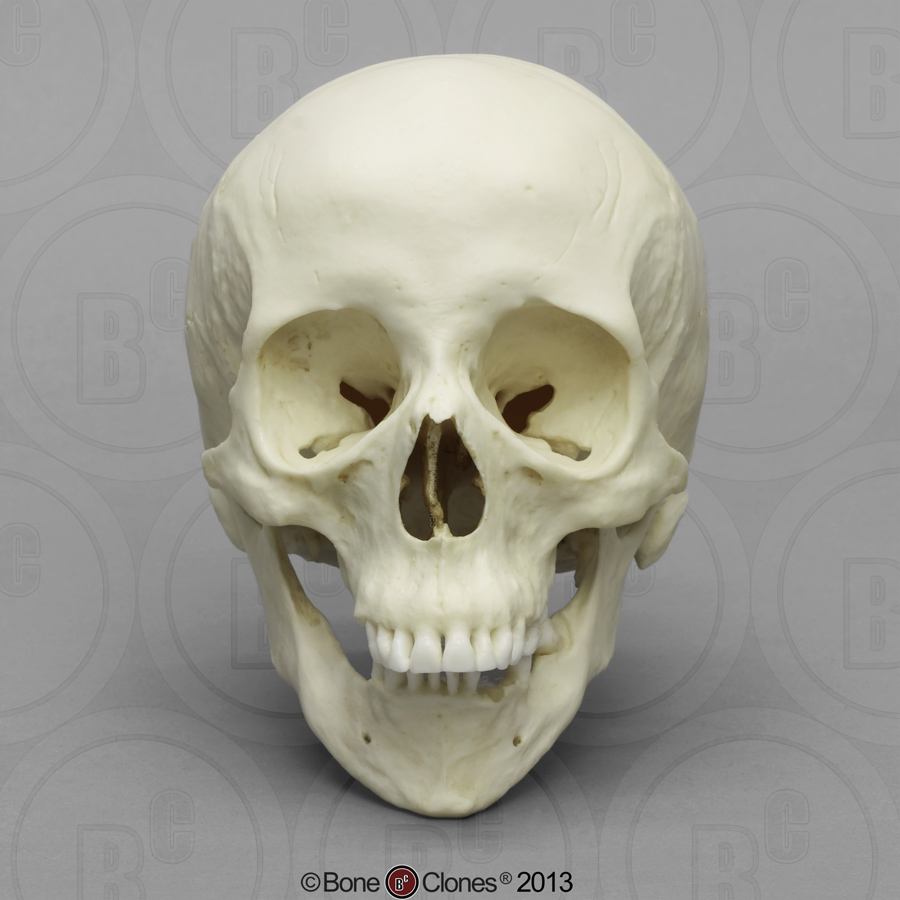 66Yold  caucasian woman with trisonomie 21