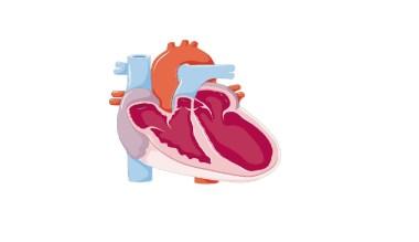 Heart failure, Congestive heart failure