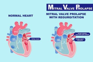 Mitral Valve Prolapse Treatment and Prevention