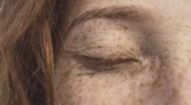 Age Spot Causes, Treatment, Prevention, and Anti Aging Tips