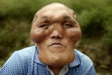 alien-like facial deformity