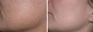 pre and post microdermabrasion