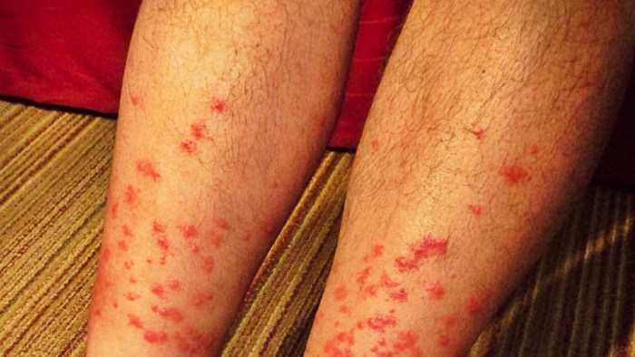 how to avoid chiggers while camping