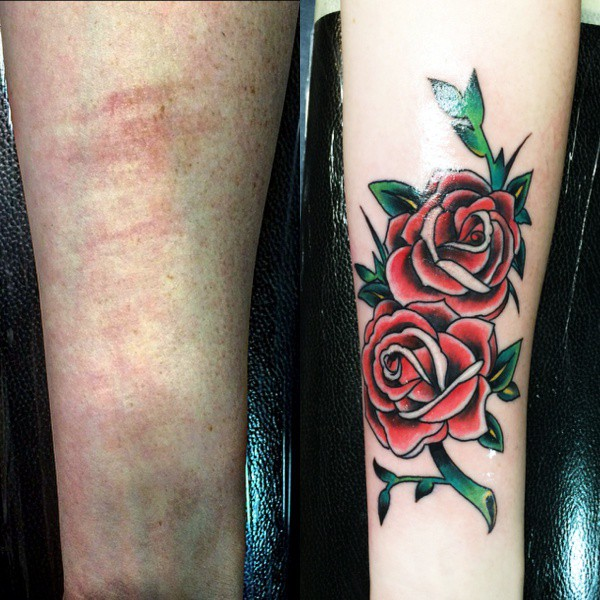 Best Tattoos Cover Scars