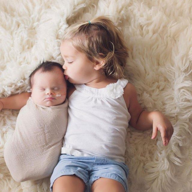 fotos-familiares-bebe-tumor-cerebral-abigail-jones (5)