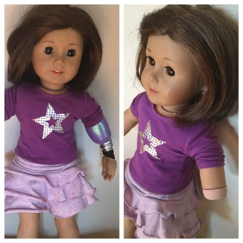 A Step Ahead Prosthetics American Girl