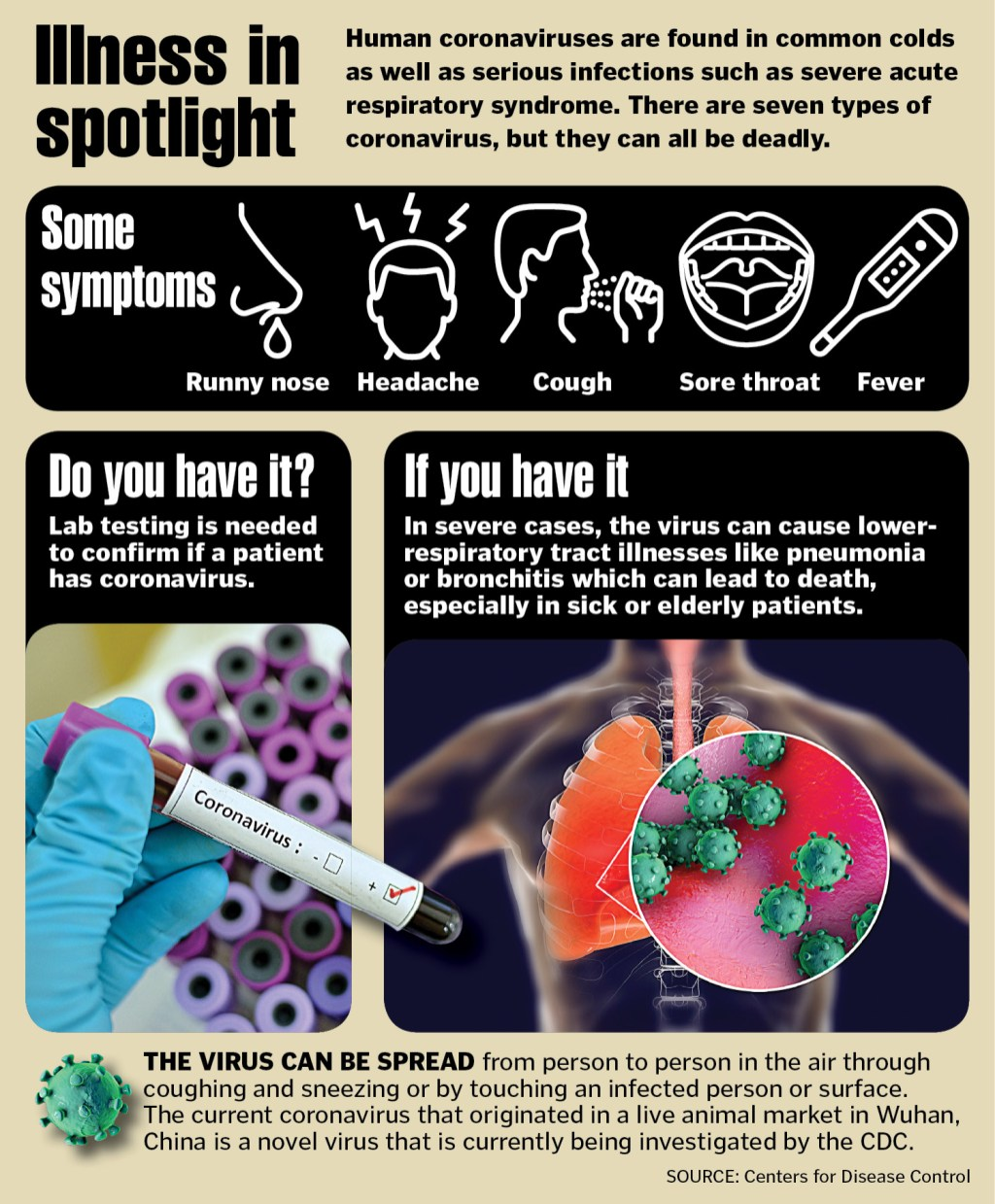 Five ways to protect yourself from coronavirus
