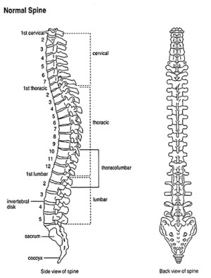 Overview of Scoliosis for Patients