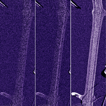 Visualization of embolism formation using cold neutron radiography