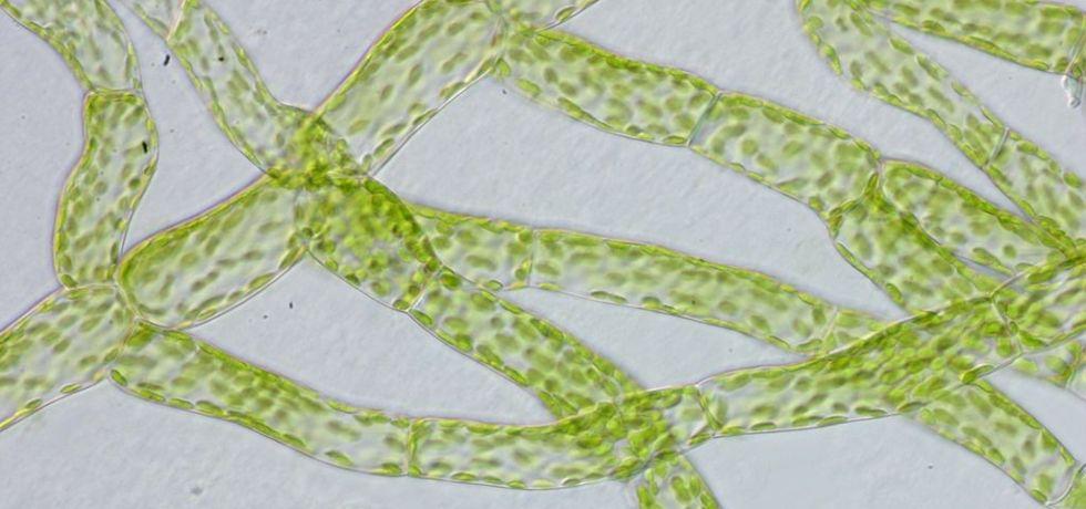 Protonemacells of Physcomitrella patens