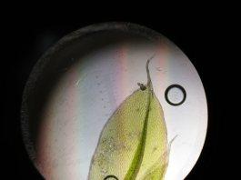 A leaf viewed through a microscope
