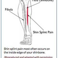 Diagram Of Tibia Stress Fracture Deep Well Jet Pump Installation Anatomy Shin Splints Treatment And Prevention Bouldercentre Medial Tibial Syndrome Is An Inflammation The Muscles Tendons Bone Tissue Around Your Pain Typically Occurs Along