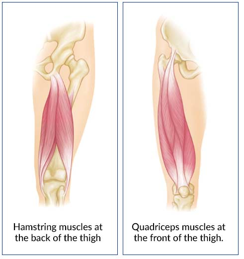Heal Torn Hamstring Muscle Thigh