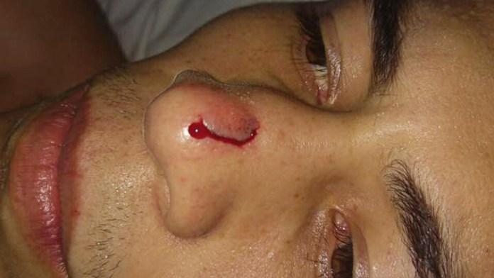 Gutierrez-Verletzung2