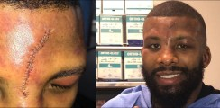 Brave Badou Jack Posts Injury Update After Horrific Cut In Browne Fight