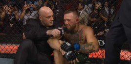Boxing World React To Conor McGregor Leg Break and Loss