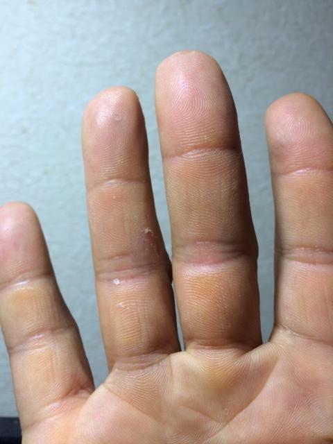 右手皮膚病完治