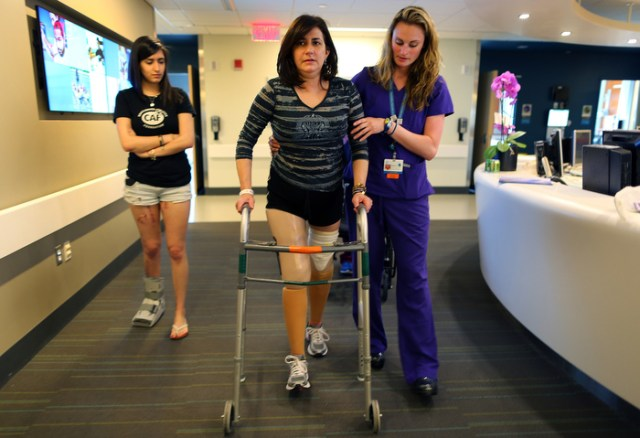 "Boston-06/20/13-  Celeste Corcoran walks on her two new prothesis at Spaulding Rehab. She lost both legs in the first Marathon bombing. She is helped by physical therapist Alyson Jodoin as her daughter Sydney(l) who was also severely injured walks with them. ""They just feel so unnatural. It feels like you're walking on stilts."" Celeste said."