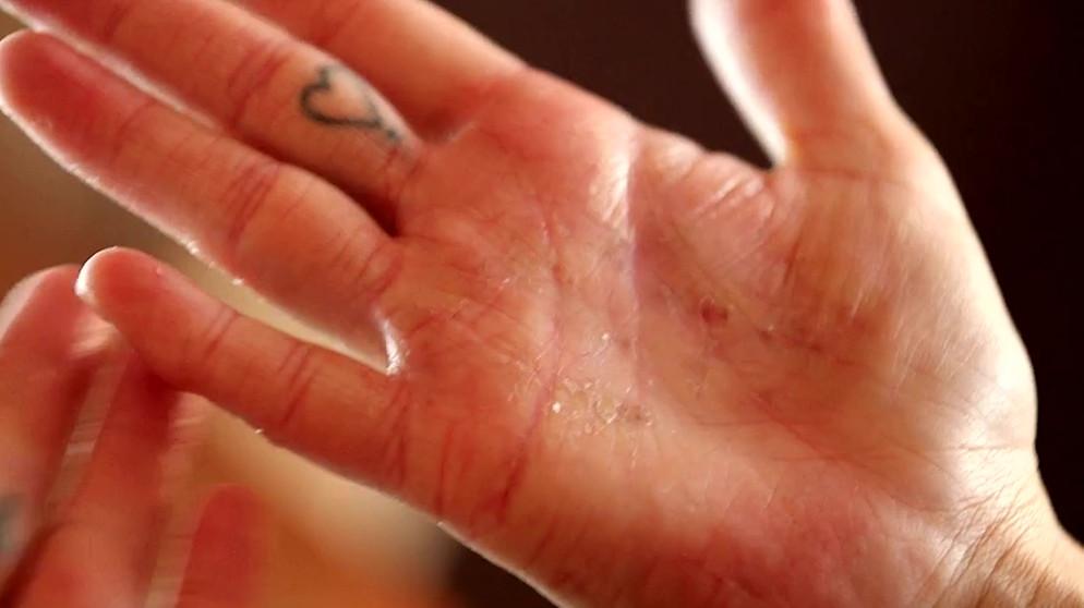 handekzem was hilft gegen juckende