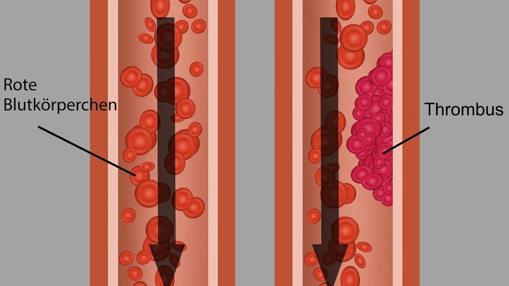 thrombose muskelkater oder thrombose