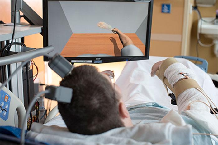 Paralyzed people regain movement using brain interfaces
