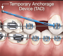 TADs (Temporary Anchorage Devices)