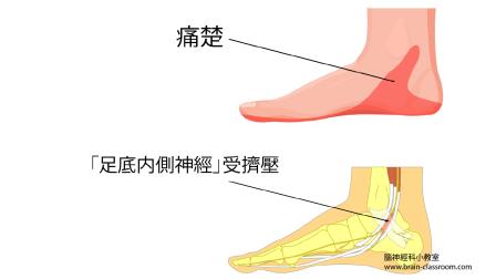 踝管綜合症