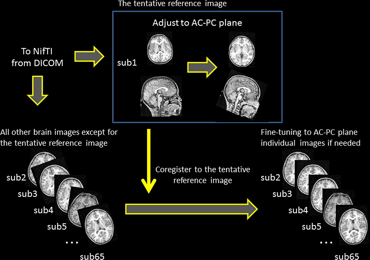 A Study Of The Standard Brain In Japanese Children Morphological Comparison With The Mni