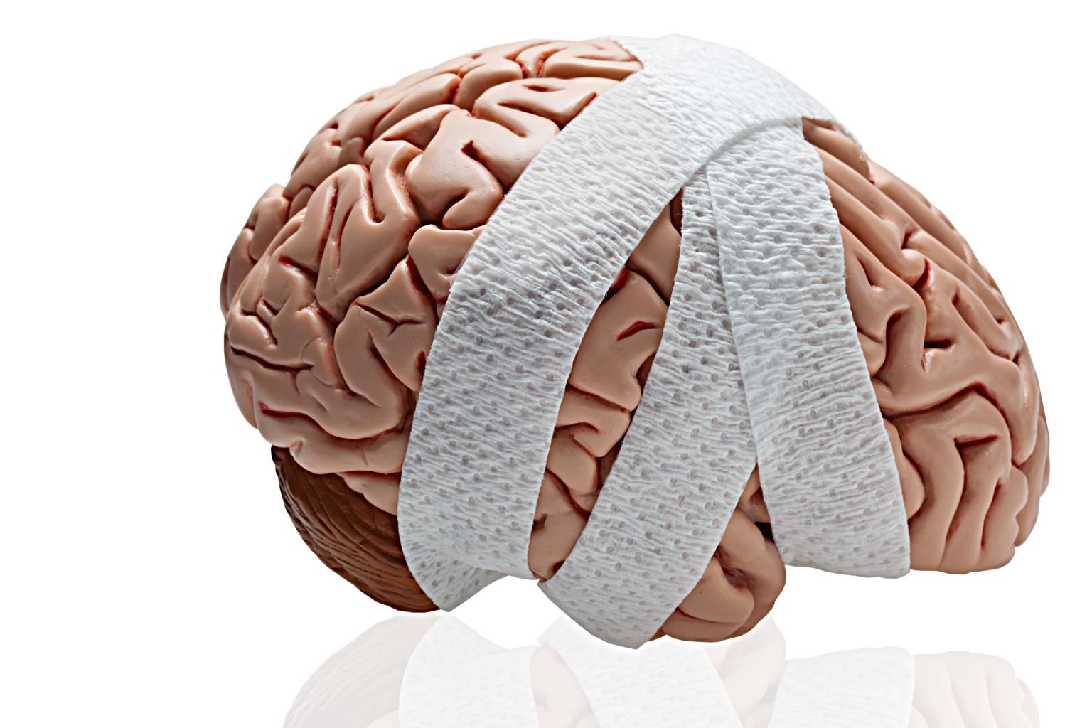 Anoxic Brain Injury BrainAndSpinalCordorg Brain