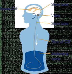 Brain & Spine Foundation   Hydrocephalus and shunts